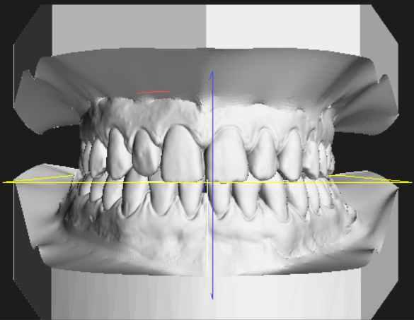 Il diritto a estetica e benessere: le nuove terapie dentarie