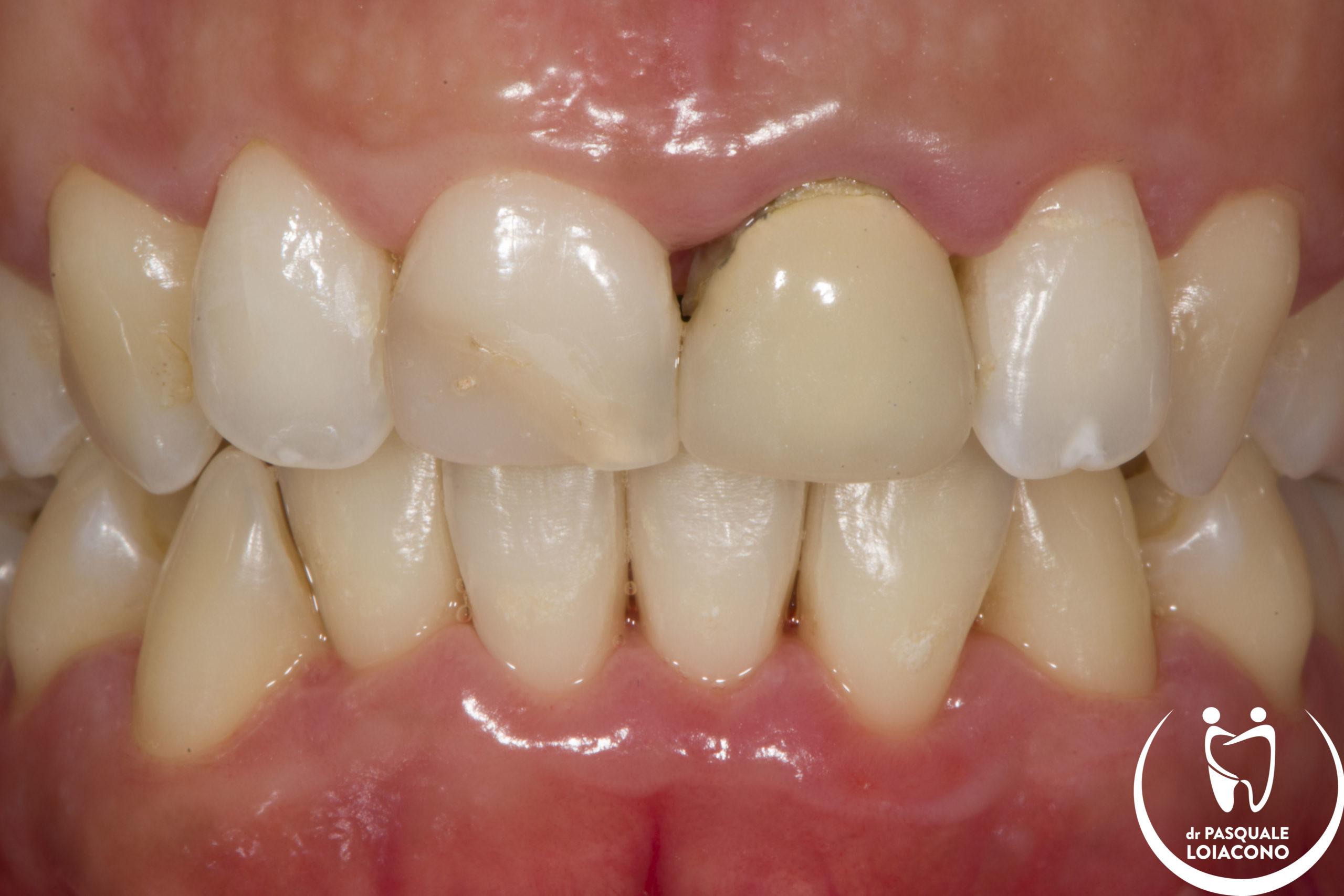 Le nuove terapie cosmetiche odontoiatriche
