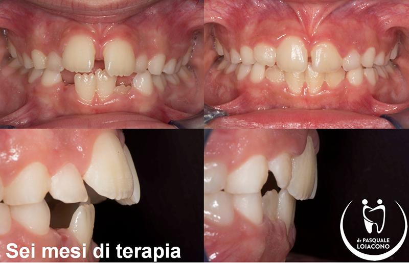 Perché ai bambini crescono i denti storti?