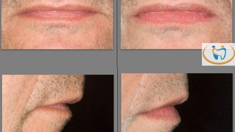 Restare più a lungo possibile giovani? Si grazie! Le tecniche anti-aging in odontoiatria