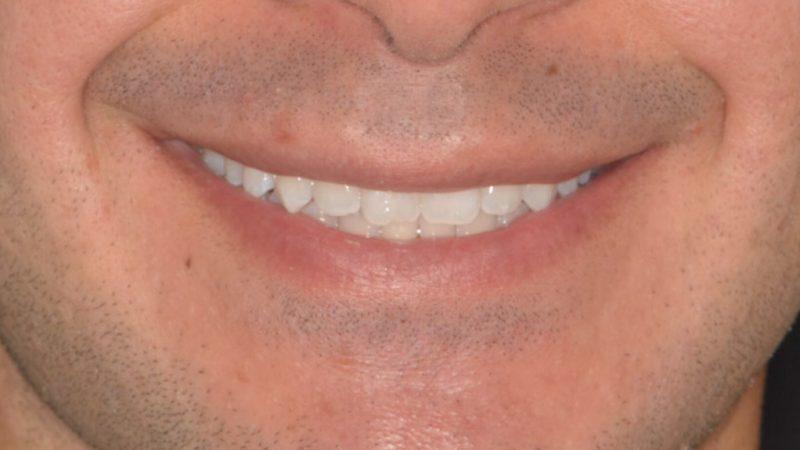 Riconquistare il piacere di sorridere: le tecniche di sbiancamento dentale